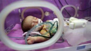 20180618T1006 0271 CNS POPE FAMILY EUGENICS 373x210 300x169 - SYRIA BIRTH DEFECT